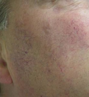 Facial thread veins before VPL laser treatment